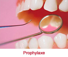 Contentpics-4-Prophylaxe